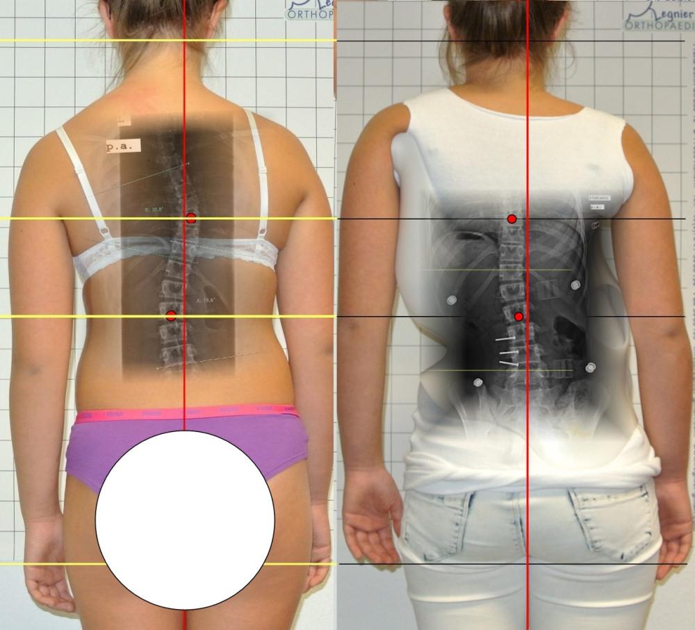 skoliosekorsett  u203a regnier orthopaedie